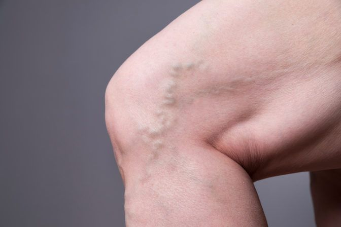 Varicose veins closeup. Thick female legs