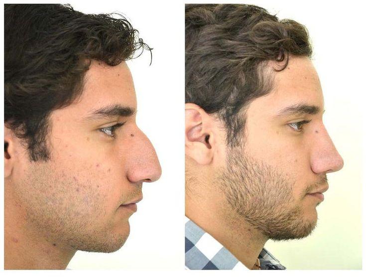 Cirugia plastica de nariz / rinoplastia en Guadalajara