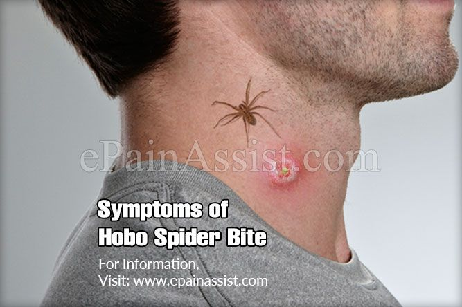 Symptoms of Hobo Spider Bite