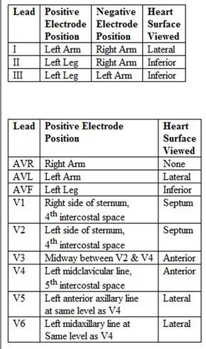 4 lead ekg placement diagram how to make a venn the 25+ best 12 ideas on pinterest   cardiology, cardiac nursing and ...