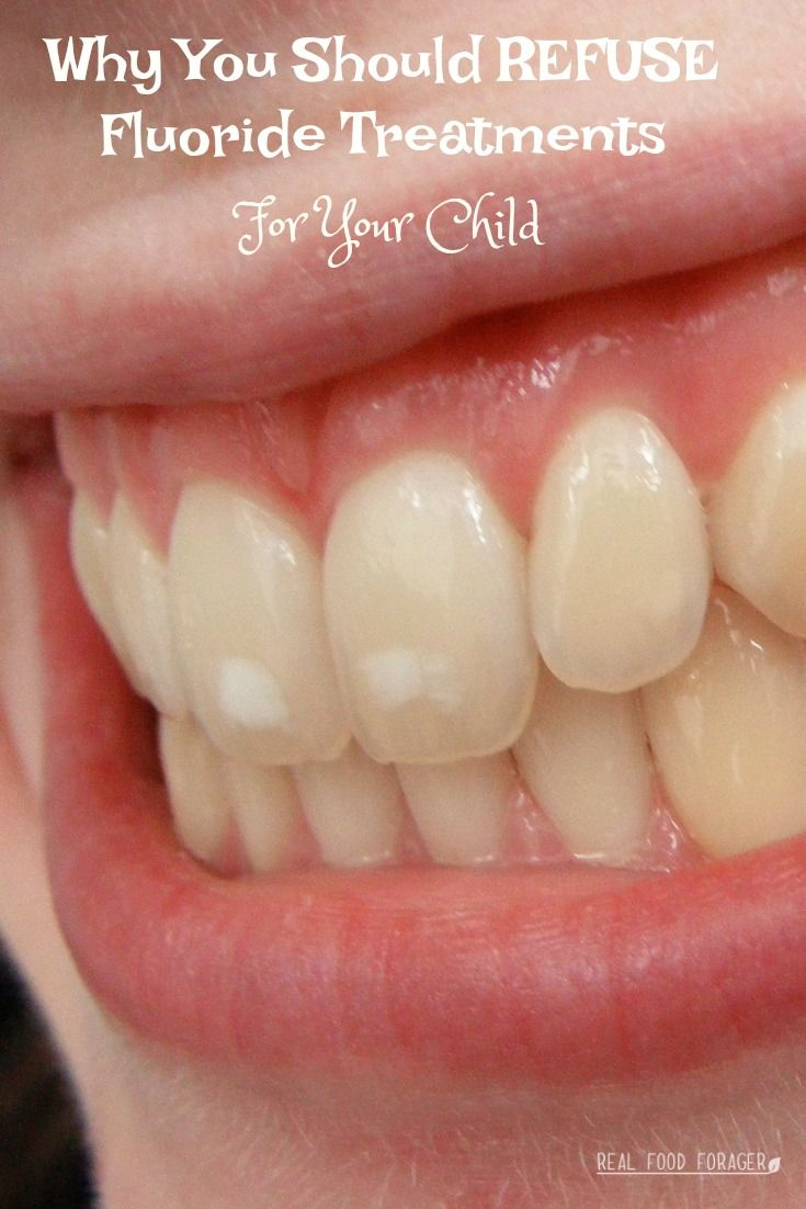 Why You Should Refuse Fluoride Treatments For Your Child Beauty