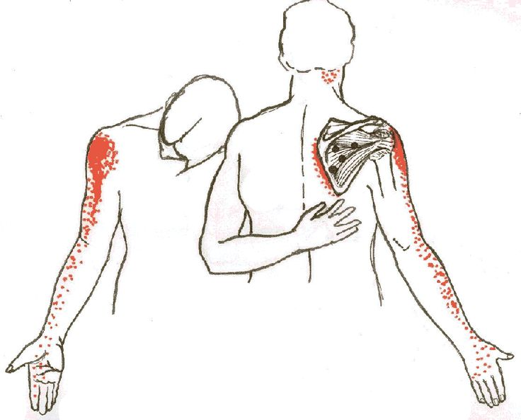 Identifying the source of shoulder pain (list of every muscle and locations of possible pain)