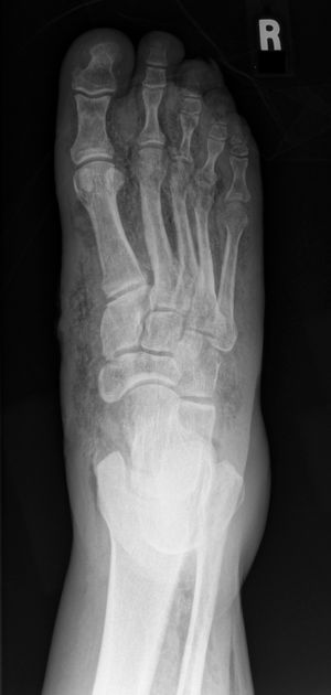 Necrotising faciitis in a diabetic foot | Radiology Case | Radiopaedia.org