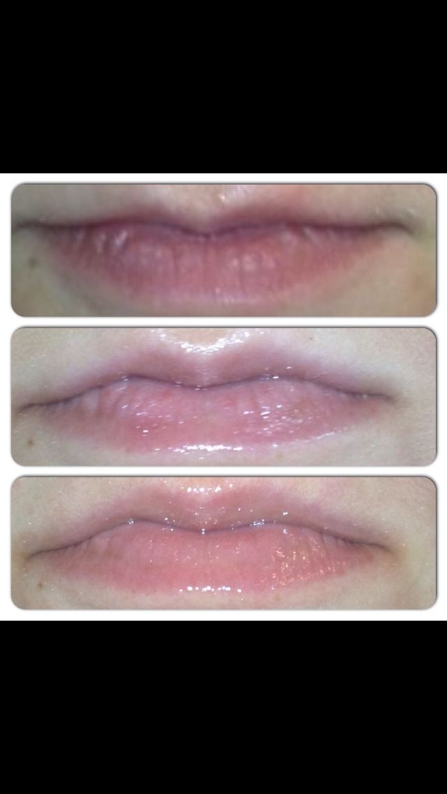"""Here are """"before and after"""" photos of my daughter (who is also a Rodan+Fields consultant) using the Lip Micro-Dermabrasion and the Lip Renewing Serum, after only one week of use! Amazing!"""