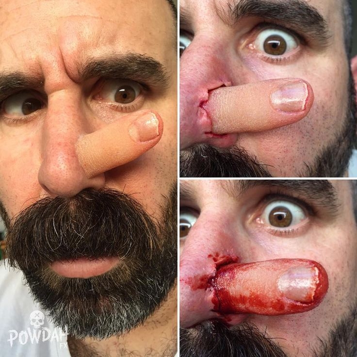 Cutting room floor. Sadly this nose pick accident makeup just didn't make it…