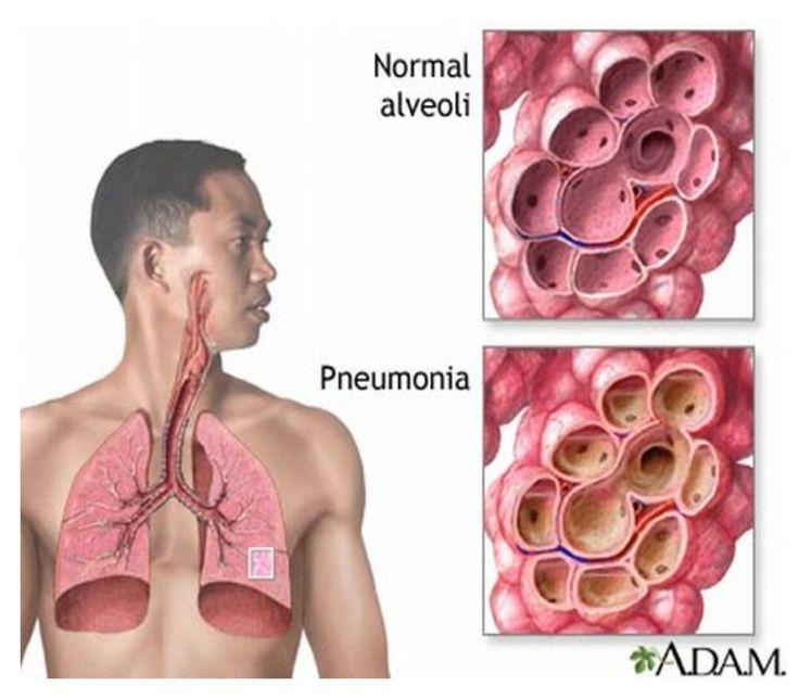 VI KHUẨN Streptococcus pneumoniae VÀ CÁC BỆNH NHIỄM TRÙNG XÂM NHẬP