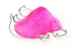 aparelho ortodôntico móvel contenção http://www.sorridere.net/tratamentos/aparelho-ortodontico/