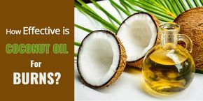 How good is coconut oil for burns and scars? Does it heal or treat 1st,2nd, 3rd degree and sunburns? Find out...