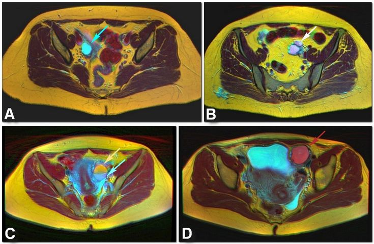 Four kinds of ovarian cysts on trichromatic Color MRI A: Functional ovarian cyst B: Hemorrhagic cyst C: Fat-fluid level of mature teratoma D: Endometrioma. Key to colors: Yellow: Fat, Cyan: Water, White: Blood, Red: Chronic blood products, Dark red: Muscle