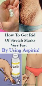 How To Get Rid Of Stretch Marks Very Fast By Using Aspirin! – Airplus