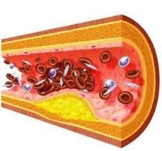 Холестерин и диета. Естественные способы для снижения уровня холестерина / Питание / Диета плюс