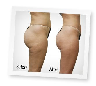 Before & After | Weight Loss, Cellulite and Exercise ...