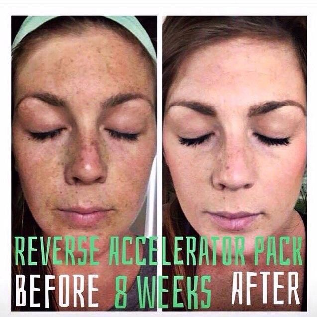 Rodan and Fields' Reverse Regimen literally reverses sun damage. These before and after pictures are proof positive of that! You, too, can achieve results like this with Premium Skincare at your fingertips! Ask me how to save 10% off and get free shipping!  https://kbenavides1.myrandf.com/