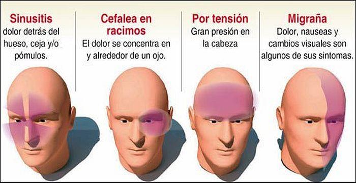 ¿Qué es la presión sinusal en la cabeza?