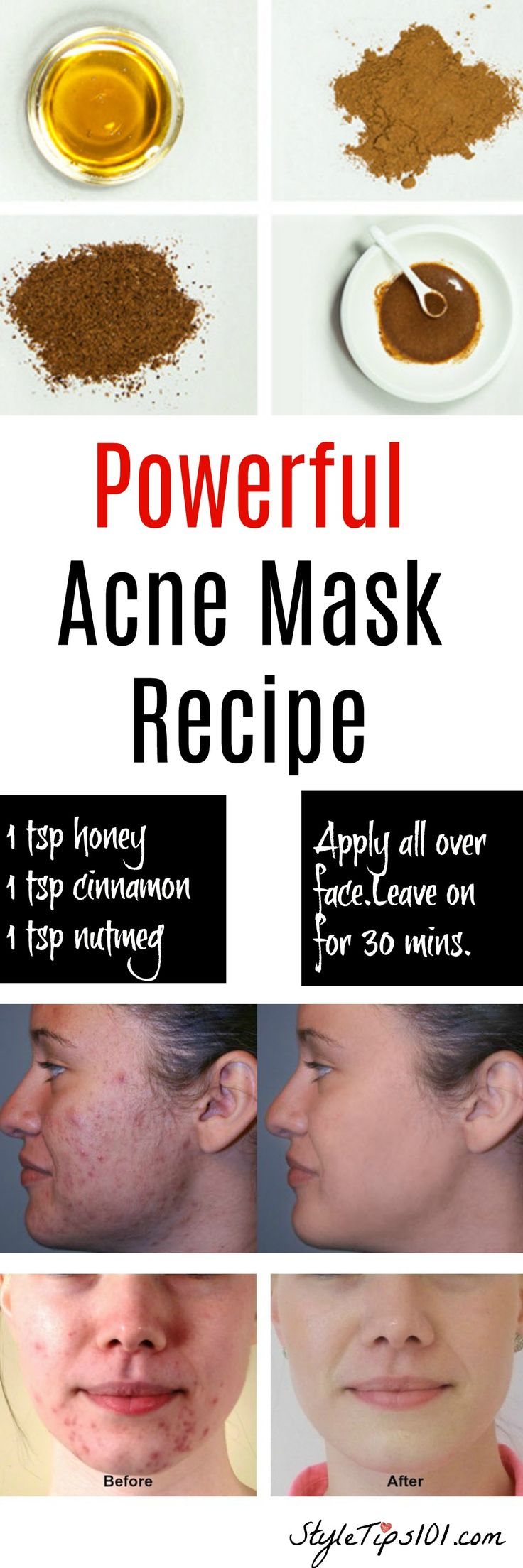 Natural Acne Mask