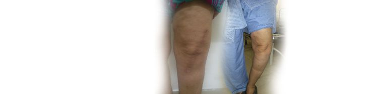 Your knees may develop problems like pain, swelling, instability, locking or general difficulty in walking, climbing stairs and running. Common causes for these problems are cartilage and ligament injuries as well as arthritis or wear-tear of knee. At The Joint Clinic we tailor make solutions of Knee pain Treatment in India, Knee replacement in India etc. Simple problems are treated by medication and exercises.