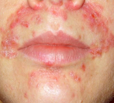 Natural Remedy For Eczema On Neck