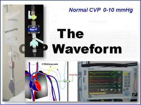 CVP and Arterial Line Waveform Interpretation - YouTube