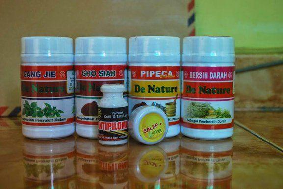 Cara Mengobati Kondiloma Akuminata Pada Pria maupun wanita dengan menggunakan obat kondiloma akuminata herbal tanpa operasi kutil