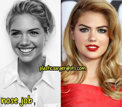 Kate Upton Plastic Surgery Before And After Plastic Surgery Hits
