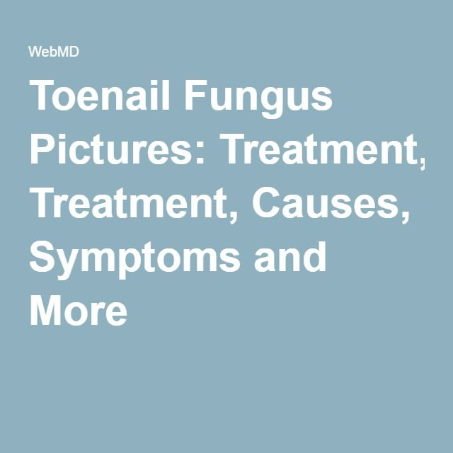 Toenail Fungus Pictures: Treatment, Causes, Symptoms and More