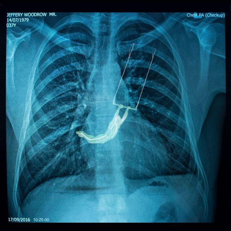 Heartburn.  Chest X-ray of Jeffery Woodrow