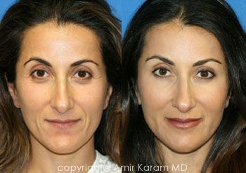 Facial Fat Transfer-for hollow eyes