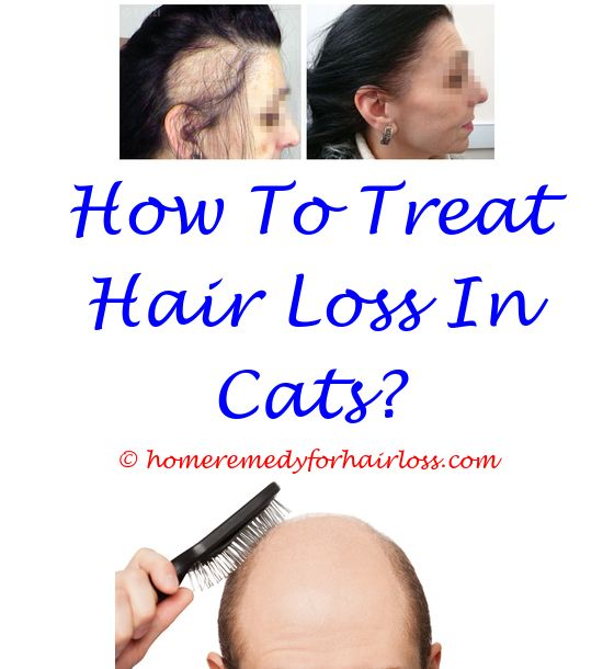 can scabies cause hair loss - hair loss treatment for african american hair men.facial hair loss patches testosterone blocker for hair loss can myomin cause hair loss 9841092225