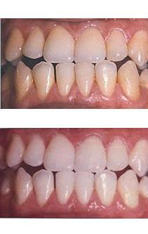 Cost For Teeth Whitening Check more at http://www.healthyandsmooth.com/teeth-whitening/cost-for-teeth-whitening/