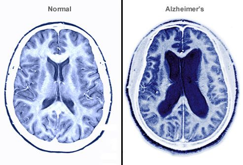 Alzheimer Brain MRI-What Happens to the Brain?  Alzheimer's causes nerve cell death and tissue loss throughout the brain. As the disease gets worse, brain tissue shrinks and areas that contain cerebrospinal fluid become larger. The damage harms memory, speech, and comprehension.