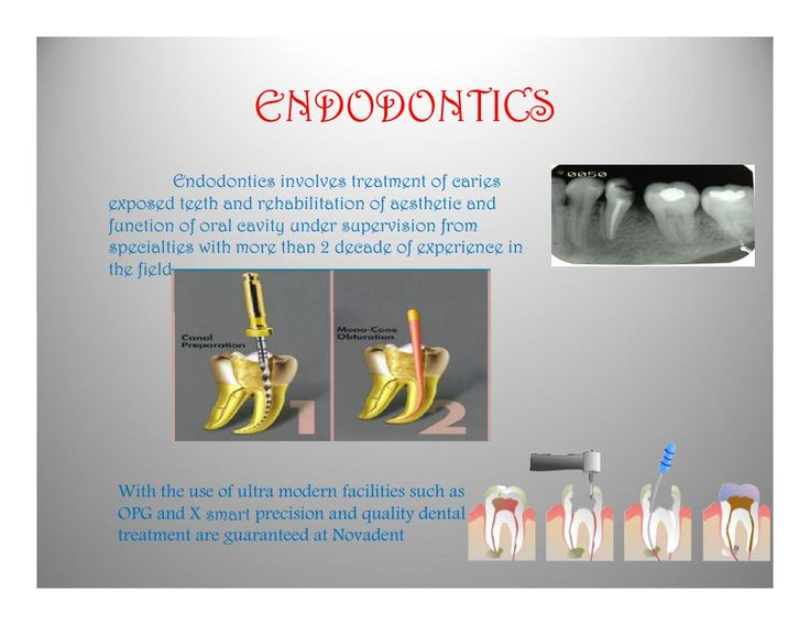 ENDODONTICS                     Endodontics involves treatment of caries exposed teeth and rehabilitation of aesthetic and function of oral cavity under supervision from specialties with more than 2 decade of experience in the field  With the use of ultra modern facilities such as OPG and X smart precision and quality dental treatment are guaranteed at Novadent  #DentalTreatment #DentalClinic #DentalSpecialist #kannur #kerala #dentalclinic #dentalcare
