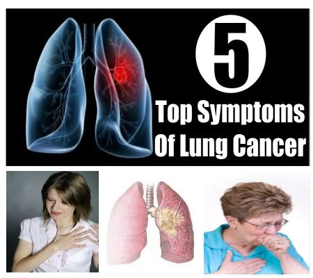 top 5 symptoms of lung cancer health care pinterest. Black Bedroom Furniture Sets. Home Design Ideas
