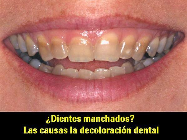 ¿Dientes manchados? Las causas de la decoloración dental   Directorio Odontológico