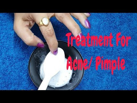 Most Effective Treatment of PIMPLES with Disprin/A…
