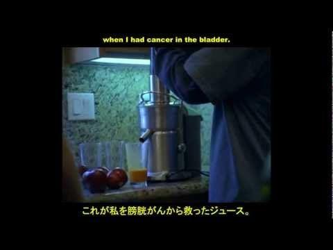 素敵な真実  スティーブ・クロシェルさんのゲルソン療法におけるドキュメンタリー映画「The Beautiful Truth」に日本語字幕  食事療法で十分な健康増進できることがよく知られるようになってきました。遺伝病だと言われている病気も実は治ることが圧倒的に多いのです。遺伝病とするのは政府・医療業界・食品業界が自分たちの犯罪性を隠すためで、例えば、ナターシャ・キャンベル・マックブライド医師(http://www.youtube.com/watch?v=DG0HldVSkzU )によると自閉症の子供も食事療法で治るそうです。ここでおもしろいのは、ゲルソン療法は絶対菜食主義ですが、キャンベル・マックブライド医師の療法では有機動物脂肪や発酵食品も重要な栄養源にしているところです。