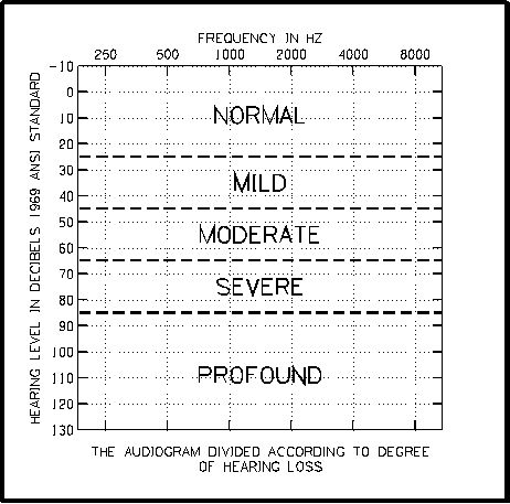 Audiogram Repinned by SOS Inc. Resources @sostherapy. I will go from a profound hearing loss to a mild hearing loss with my implants across all tones! Yes!