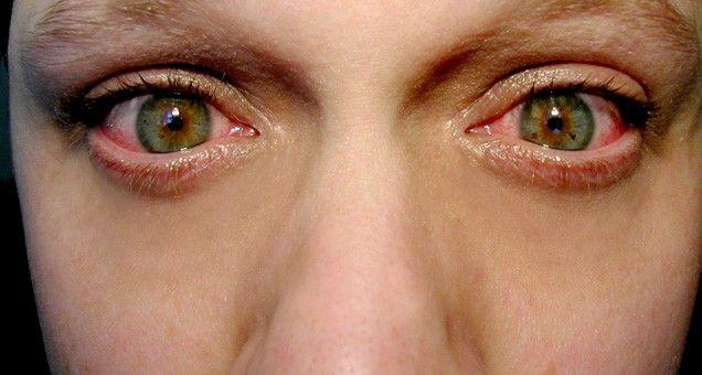 red-eye-bloodshot-eyes.athomemagazine.co_.uk_.jpg (636×340)