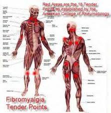 fibromyalgia treatments, fibromyalgia cure, fibromyalgia natural treatment