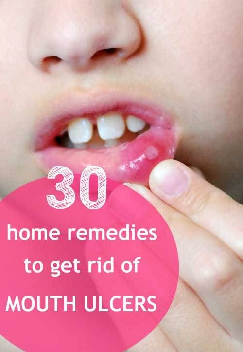 30 Home Remedies to Get Rid of Mouth Ulcers https://www.homeremedyhacks.com/30-home-remedies-get-rid-mouth-ulcers #MouthUlcer #Ulcer