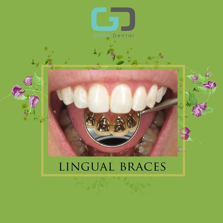 Lingual braces are one of the many types of the fixed orthodontic treatment appliances available to patients needing orthodontics. It involves attaching the orthodontic brackets on the inner sides of the teeth. The main advantage of lingual braces is its near invisibility compared to the standard braces which are attached on the buccal sides of the tooth.  If you are interested on this procedure, talk to us now!  Book an appointment at 09989996867 and (02)4163628 to learn more about our…