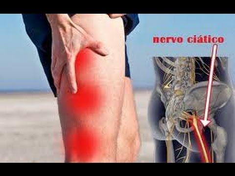 O que é dor no  Nervo Ciático? Causas, Sintomas e Tratamento.