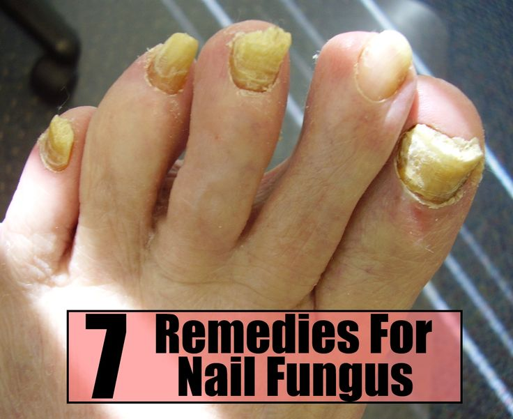 7 EFFECTIVE HOME REMEDIES FOR NAIL FUNGUS