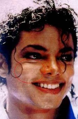 What Did Michael Jackson Do To Make His Skin White?
