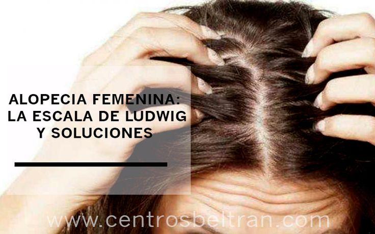 Alopecia femenina: escala de Ludwig
