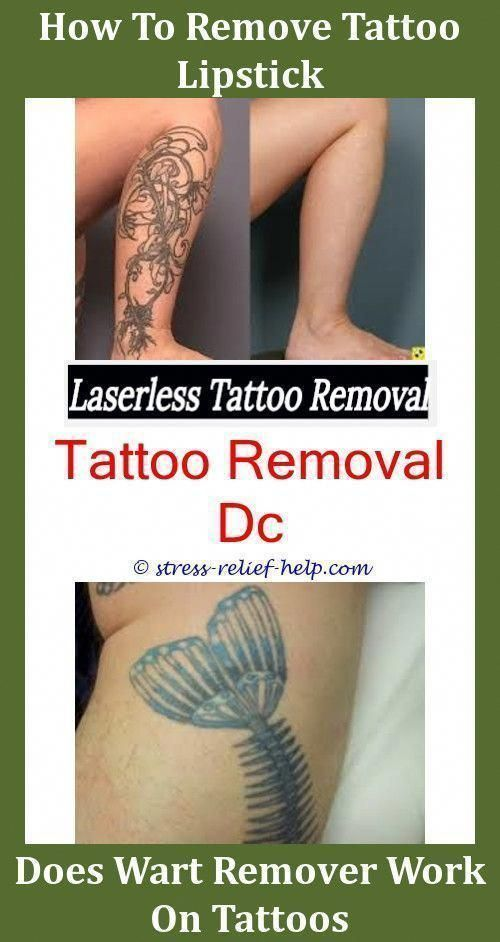 Tattoo Removal London Foot Tattoo Removal Before And After New Laser