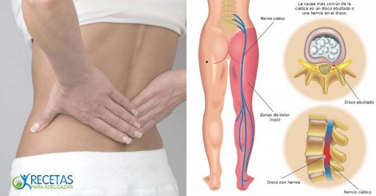 El nervio ciático se encuentra ubicado en la zona espinal. Al inflamarse alguna de las cinco raíces de este nervio, se produce un dolor que puede afectar la zona lumbar, los glúteos, o diversas partes de la pierna y el pie. La neuritis ciática es, literalmente, un terrible dolor en el trasero. P…