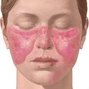 "Lupus ""butterfly"" rash"