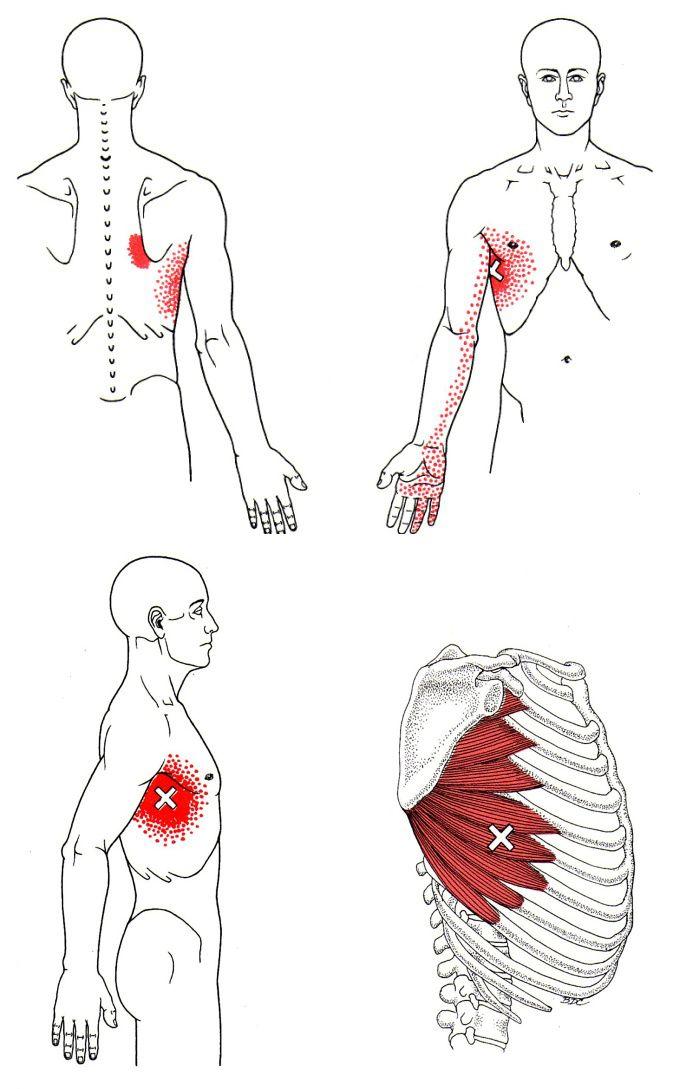 Muskel der seitlichen Thoraxwand | The Trigger Point & Referred Pain Guide