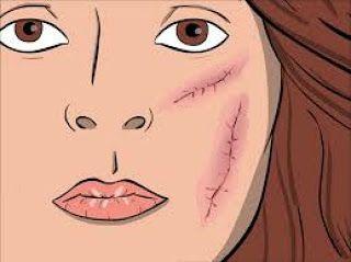 Soin cicatrisant fait maison 100% naturel