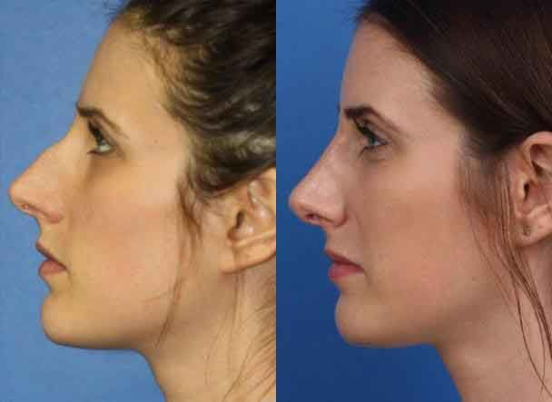 Plastic Surgery Before And After Nose Jobs 8 Liposuction Before And After Nose Plastic Surgery Nose Job Rhinoplasty Nose Jobs